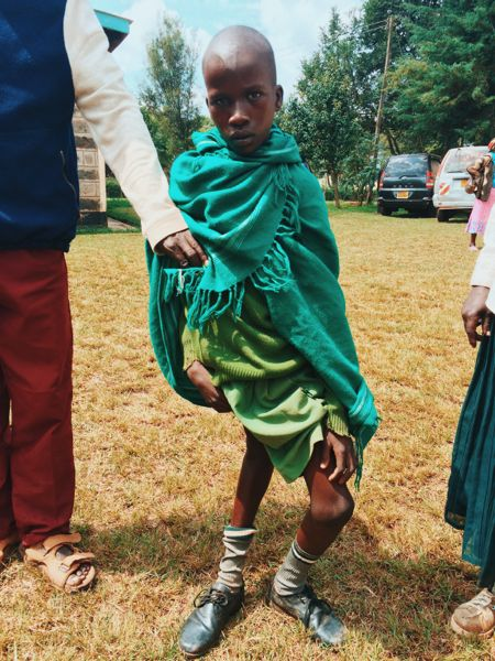 Emmanuel needs an operation to correct his legs and allow him to be able to walk easier.